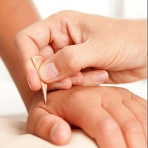 Where Acupuncture and The Western World Converge