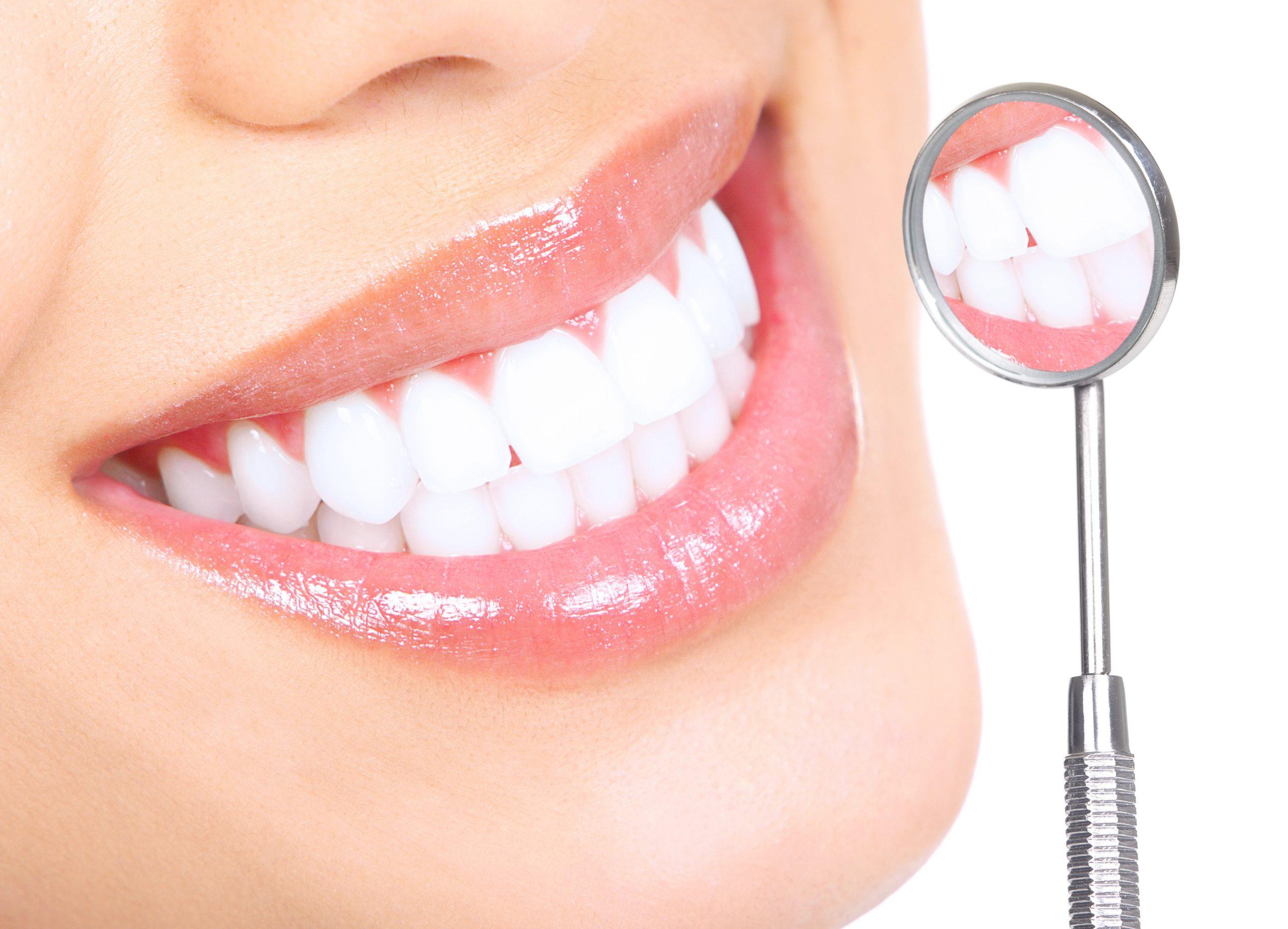 Why Dental Implants And Veneers Are Best