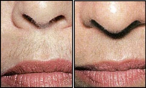 Removing Facial Hair With HairFree No.1 2