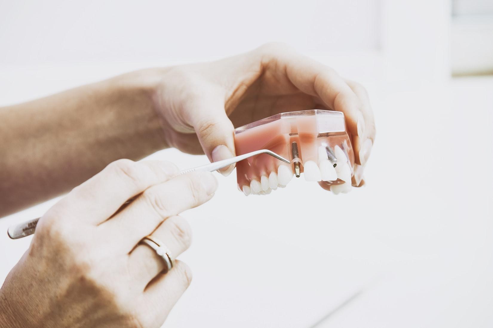 tooth extarction